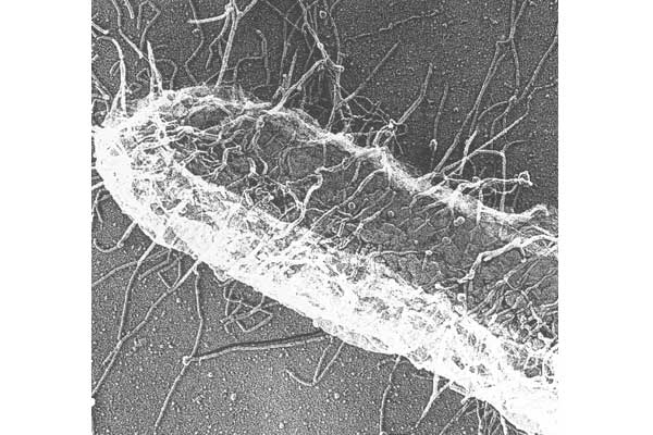 Fig. 8 High resolution electron microscopy of P piliated <i>E. coli.</i>