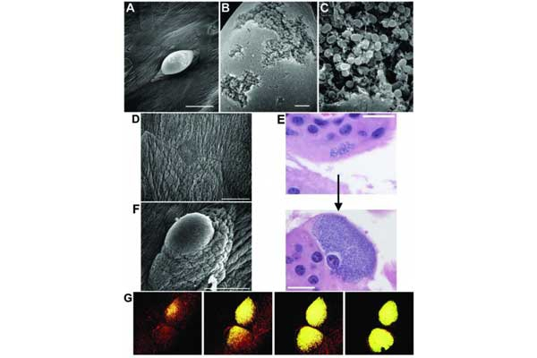 Fig. 15 Images of IBCs showing dense bacterial communities within bladder cells.