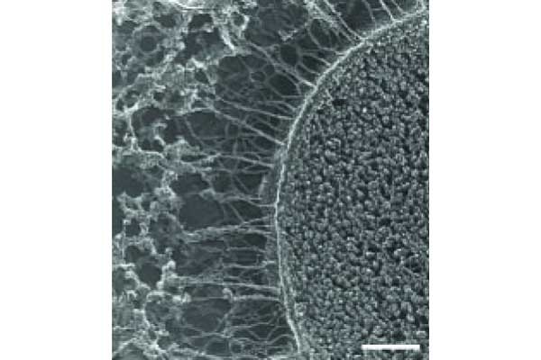 Fig. 21 Electron microscopy of fibers surrounding UPEC within an IBC.