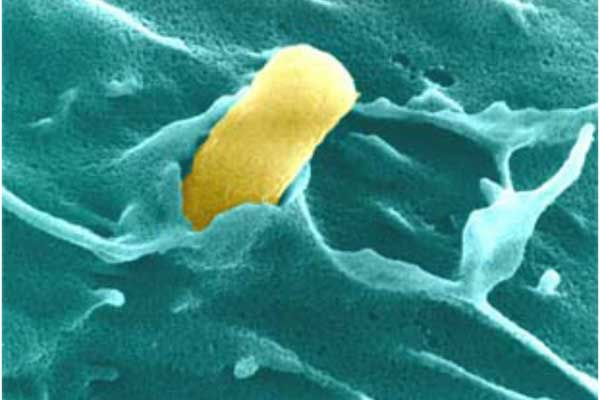 Fig. 19 Electron microscopy of UPEC invading a bladder cell (false colored)
