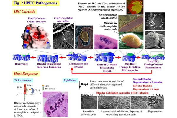 Fig. 20 UPEC pathogenesis